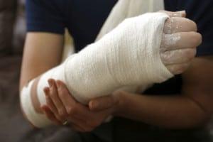 Arm in Cast | Colorado Personal Injury Attorney