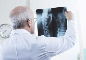 Doctor Examining an X-Ray   Michigan Metal Hip Replacement Lawsuit