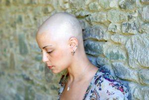 A Bald Woman | Washington Taxotere Hair Loss Lawsuit