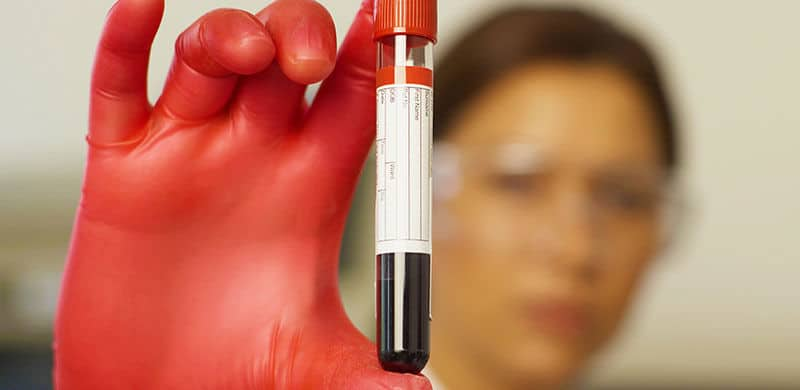 Woman Holding Vial of Blood | Arkansas Xarelto Injury Lawyer