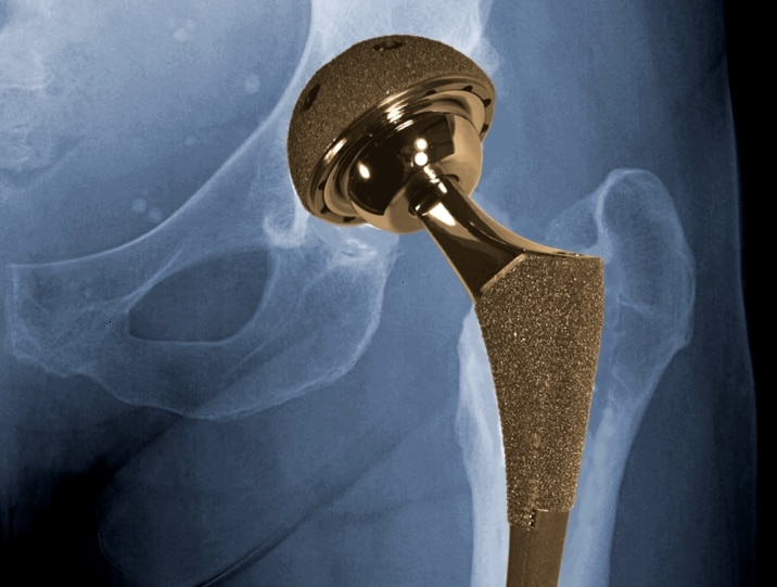 Recalled Hip Replacement