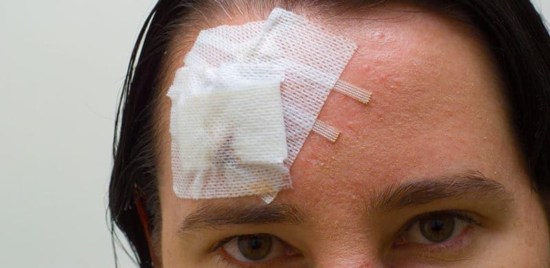 Man With Head Injury | Iowa Brain Injury Lawyer